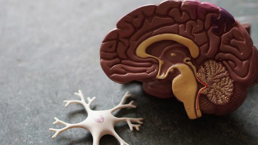 Enfoque en la esclerosis múltiple